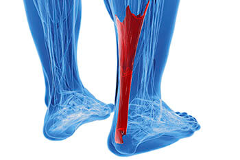 achilles tendon treatment in Chicago, IL 60614, Highland Park, IL 60035 and Chicago, IL 60640