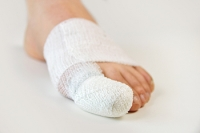 Does My Broken Toe Require Surgery?