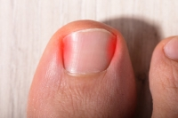 Possible Treatment of Ingrown Toenails