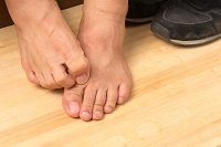 What Should I Do if I Have Athlete's Foot?